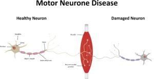 Motor neurone disease: damaged and healthy nurones